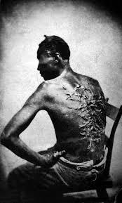slave beaten back